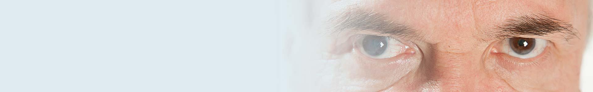conformador ocular prótesis ojo